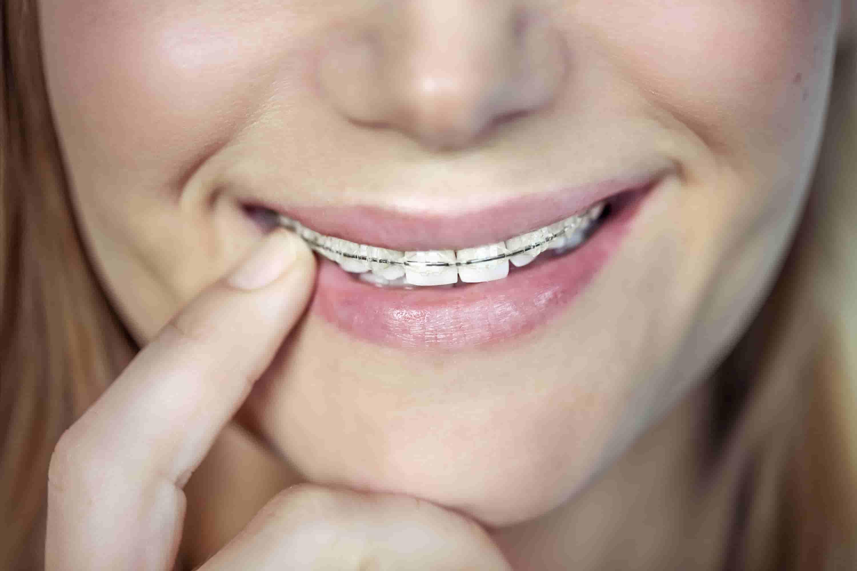 ortodonzia-adalbano