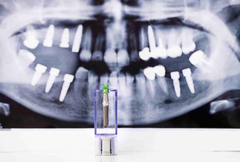 tecniche-impianti-dentali-ad-albano